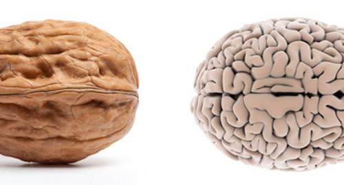 Breinmysterie